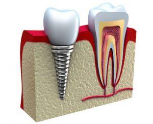 Zubný implantát