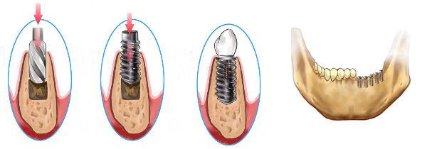 Aplikácia zubného implantátu